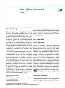 Hallux rigidus – Osteotomien - Prof. Hamel