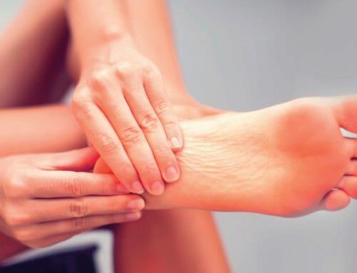 Arthrose in Sprunggelenk und Fußwurzel