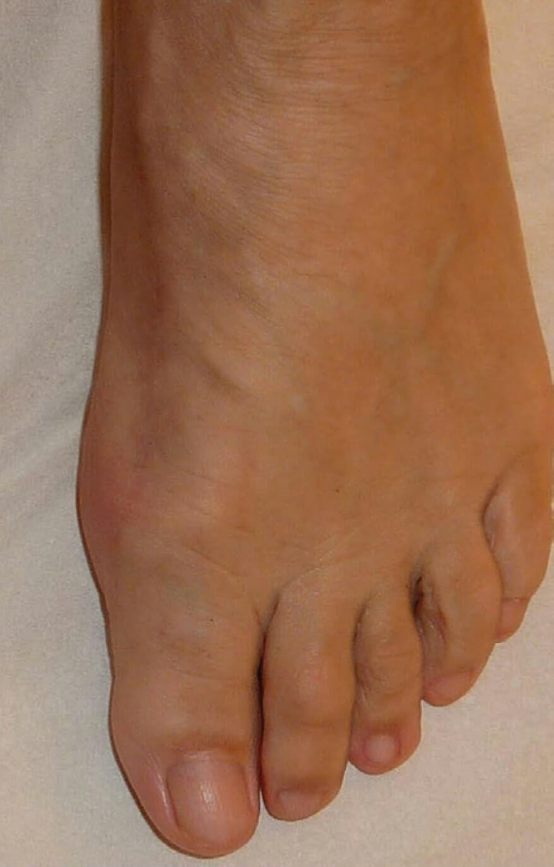 4 Monate nach OP - Fuß stabil, Großzehe beweglich, zarte Narbe