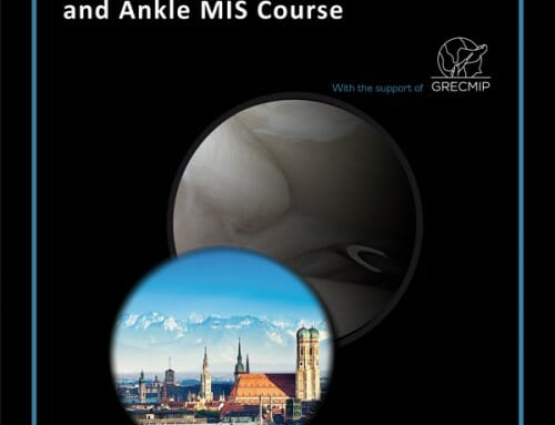 Dr. Kinast: Advanced Ankle Course –  Percutaneous Forefoot Surgery and Ankle MIS Course