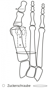 Distale Metatarsaleosteotomie L-förmige Knochendurchtrennung und Verschraubung mit resorbierbaren Zuckerschrauben (Biomet) und mit Fixation des Mittelfussknochen 1 an den 2. mit Tigertape (Arthrex) (n. Kinast)