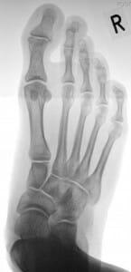 Dr. Kinast Plattfuß Röntgen rechts von oben prae op
