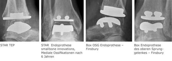 Endoprothesen