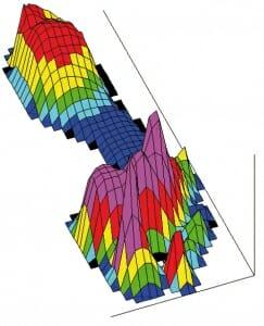 Fußdruckmessung nach der Operation (postoperative Pedographie). Der Druck ist auf dem Areal unter dem Mittelfußknochen 1, 2 und 3 verteilt nach Hallux valgus-Korrektur und Mittelfußosteotomien 2, 3 und 4.