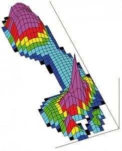 Fußdruckmessung vor der Operation (präoperative Pedographie). Der violette Druckgipfel liegt unter dem 2. Mittelfußknochen. Auf der Fußinnenseite unter dem Mittelfußknochen wenig Belastung. Das Druckprofil ist typisch für einen Fuß mit Hallux valgus und überlastetem Mittelfußknochen 2.