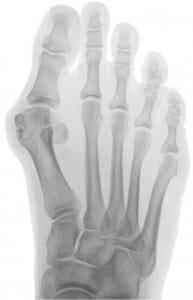 Röntgenbild vor der Operation: Hypermobiler 1. Mittelfußknochen, Hallux valgus, Hallux interphalangeus dezentrierte Sesambeine