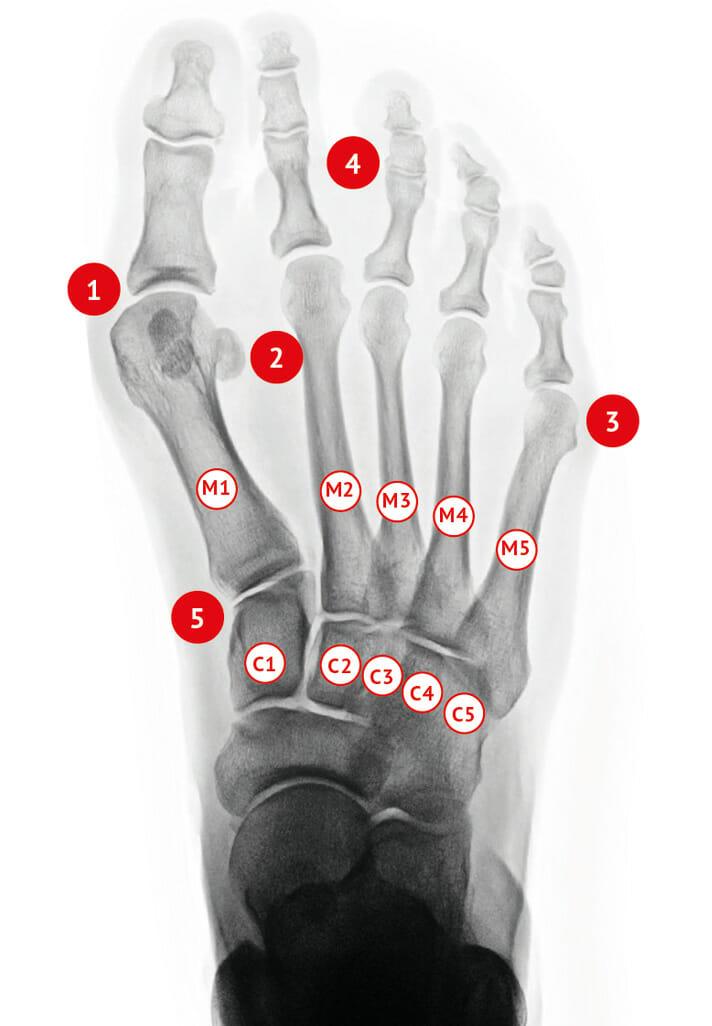 Hallux valgus rechts Röntgenbild