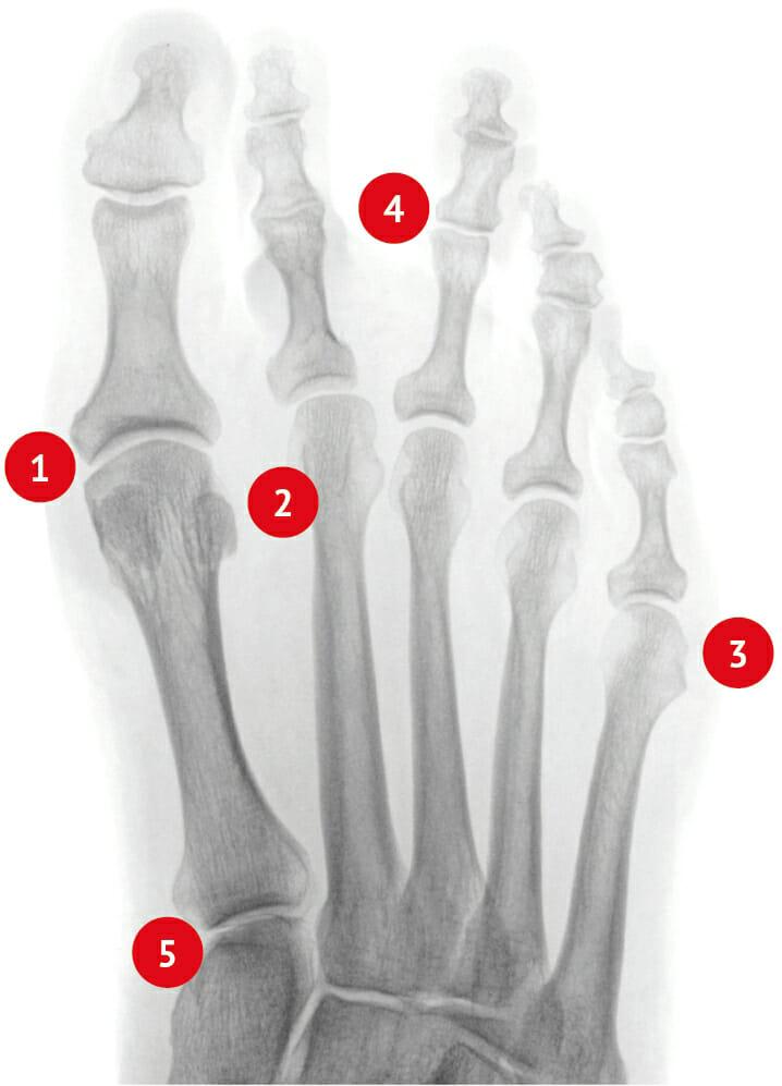 Hammerzehen rechts Röntgenbild
