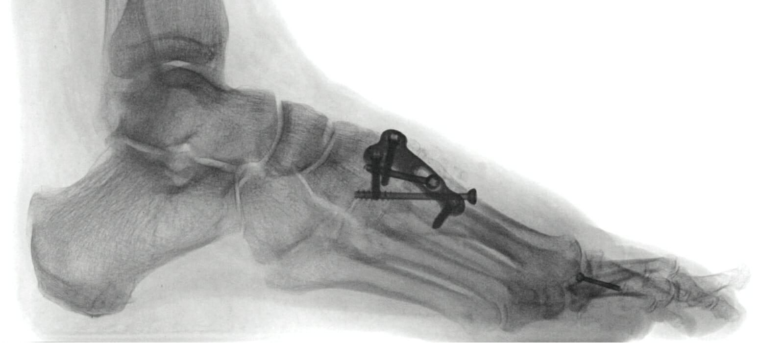 Seitliches Röntgenbild im Stehen nach Lapidusarthrodese mit axialer Kompressionsschraube medialer Platte und querer Schraube und Fusion M 1, 2, 3