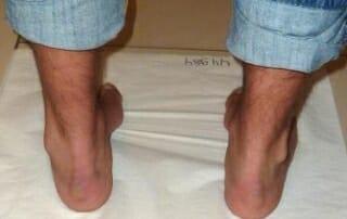 Hohlfuß mit Schmerzen hinter dem Aussenknöchel links bei Peronealsehnensplit Läsion