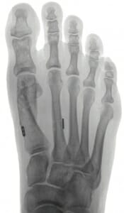 Operativ korrigierter Hallux valgus Longarm-Austin-, Akin-Osteotomie mit Fiberwire Fusion zwischen Mittelfussknochen 1 und 2