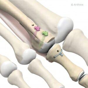 Osteotomie des Mittelfußknochen 2, Naht der plantaren Platte und Verschraubung mit 12 mm bzw. 11 mm Schrauben.