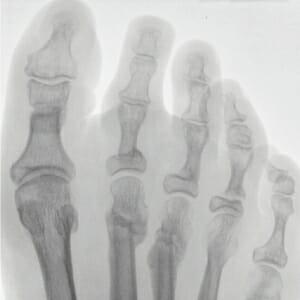 Percutane Osteotomie am Großzeh; geheilte Osteotomien M 2, M 3; basisnahe Osteotomien Z 2, 3, 4.
