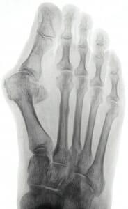 Präoperatives Röntgenbild: Hallux valgus, Metatarsus primus varus, dezentrierte Sesambeine, abgeheilte Ermüdungsfraktur M 2