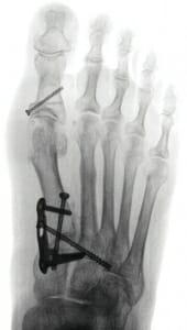 Röntgen ap im Stehen nach Lapidus- Arthrodese mit Zugschraube MC 1 u. M 1, 2, 3