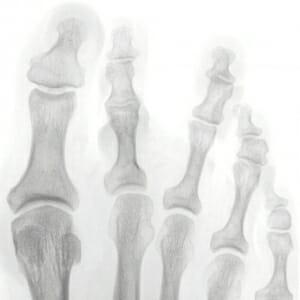 Überlänge des Mittelfußknochens 2 und 3; Z 2 steht zur Innenseite orientiert; Z 3 nach aussen; Biegung im Großzeh nach aussen.