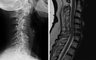 HWS-Röntgen und MRT-Bild vor OP