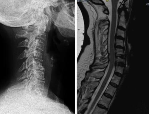 Prof. Linhardt Fallbeispiel: Fehlstellungen und Spinalstenosen der HWS