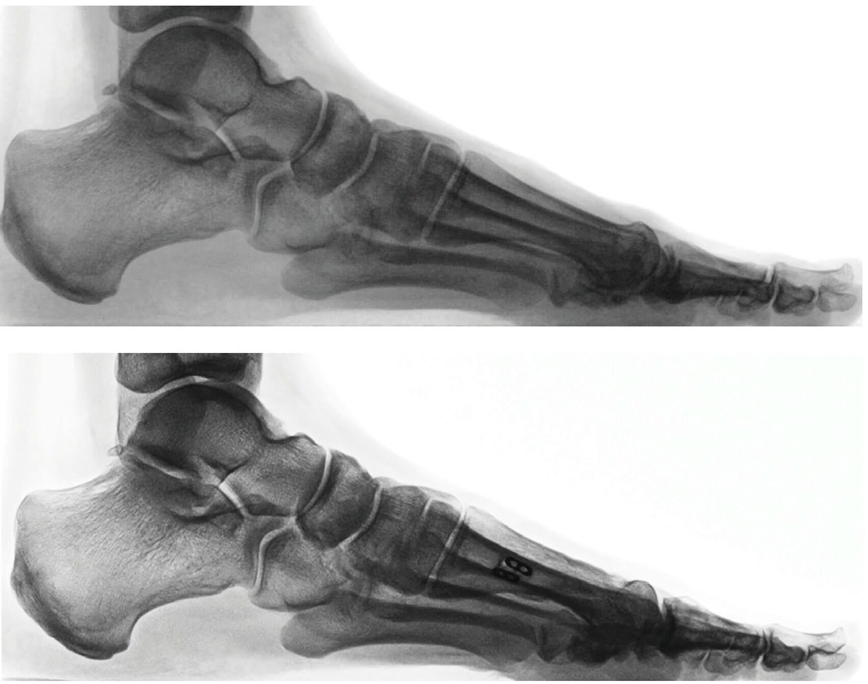 Abb. Röntgen seitlich vorher, nachher