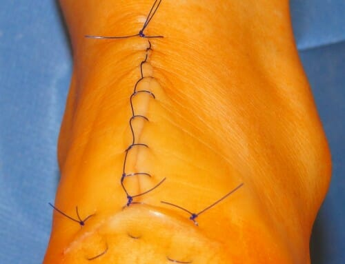 Achillessehnen-Tendinose – schneller wieder fit mit ACP und Speedbridge