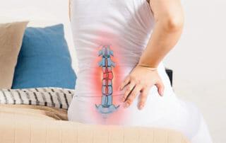 Bandscheibenvorfall der Lendenwirbelsäule - zu viel Belastung und zu wenig Bewegung können Ursachen sein