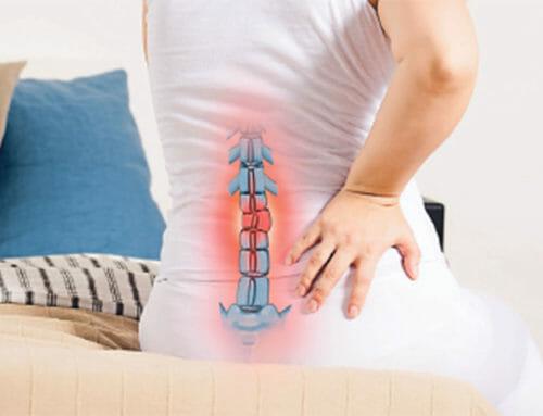 Bandscheibenvorfall der Lendenwirbelsäule: Zu viel Belastung und zu wenig Bewegung können Ursachen sein