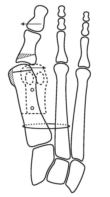 Distale Metatarsaleosteotomie L-förmige Knochendurchtrennung und Verschraubung mit resorbierbaren Zuckerschrauben (PLGA).