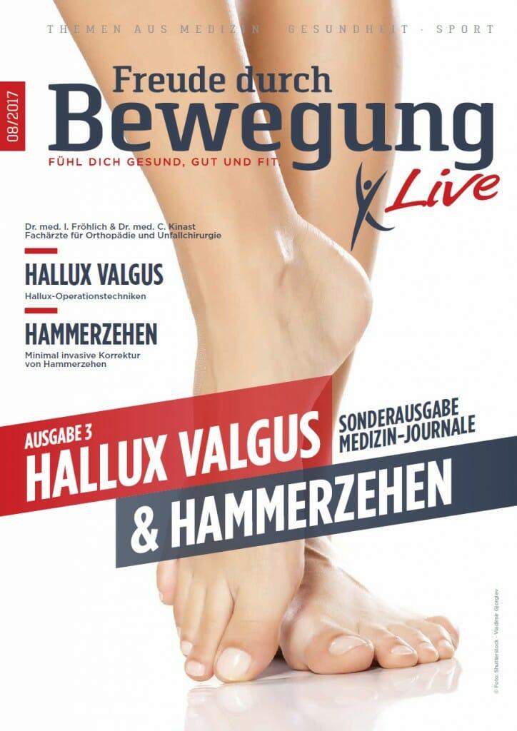 Freude durch Bewegung Live - 08-2017 - Hallux Valgus und Hammerzehen