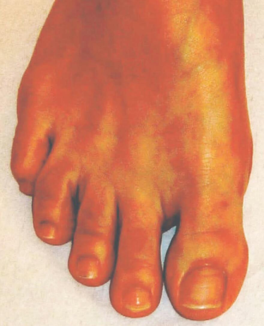 Fuß mit gerade gestelltem Großzeh, 5 Jahre nach der Operation