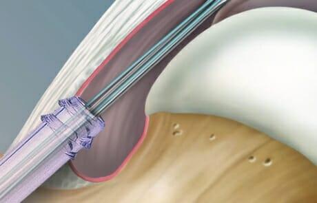 Hueftarthroskopie3