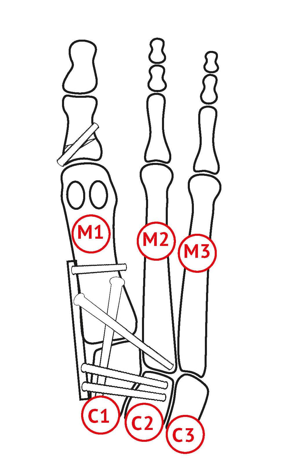 Lapidusarthrodese - Fusion M1C1, M1M2, C1C2, M1C2