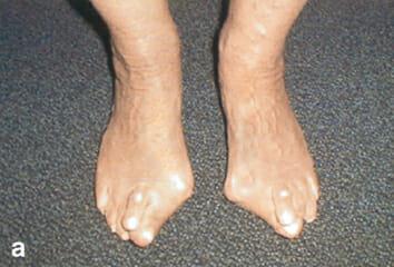 Es sind die Zapfen auf den Beinen beim Daumen erschienen