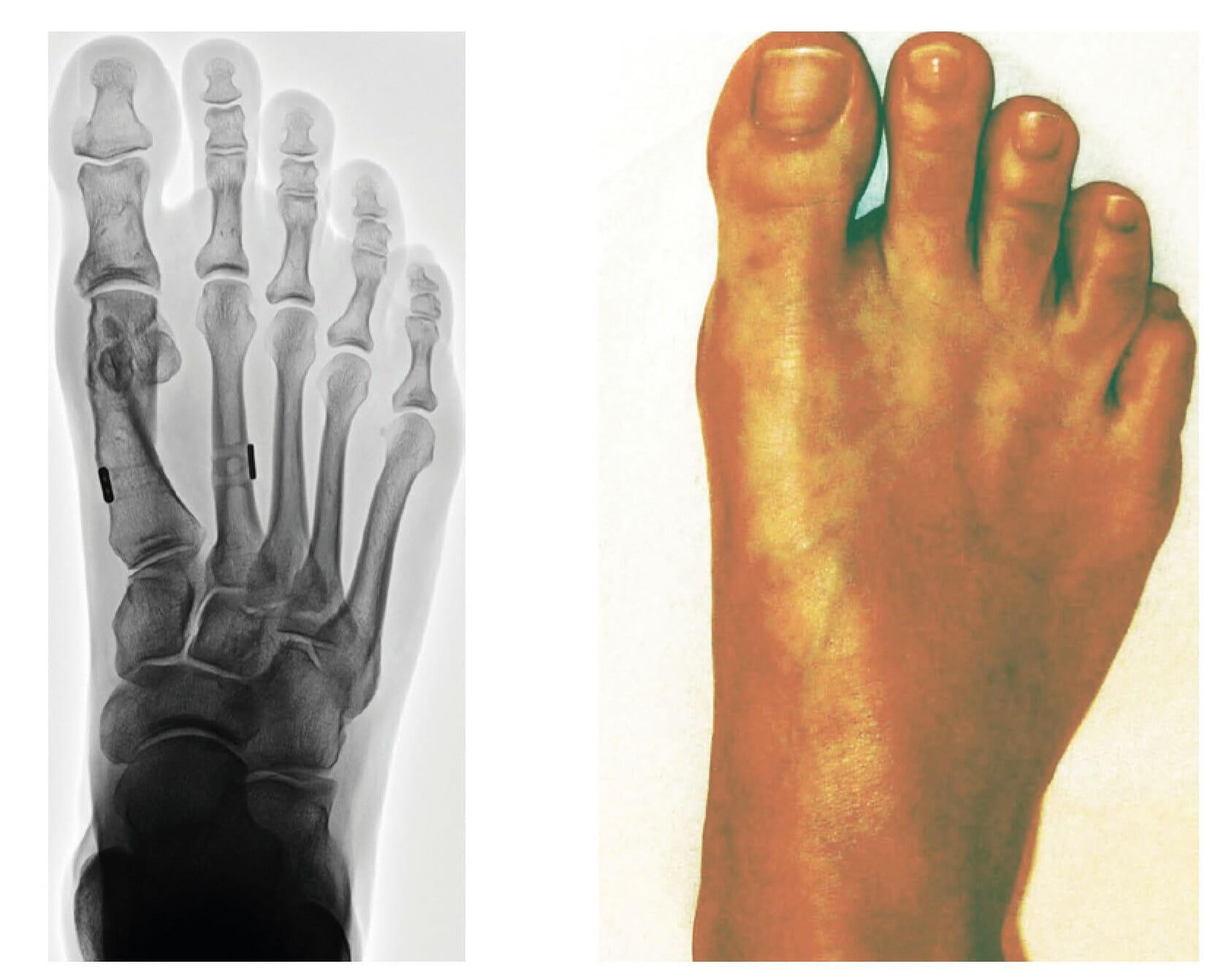 9 Monate nach OP - Distale Metatarsale 1 Osteotomie mit proximaler Bandzügelung und Akin-OP