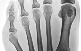 OZA Dr. Fröhlich Schneiderballen - mit Hallux valgus - Röntgenbild