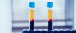 OZA Fachbereich Regenerative Medizin, Eigenbluttherapie
