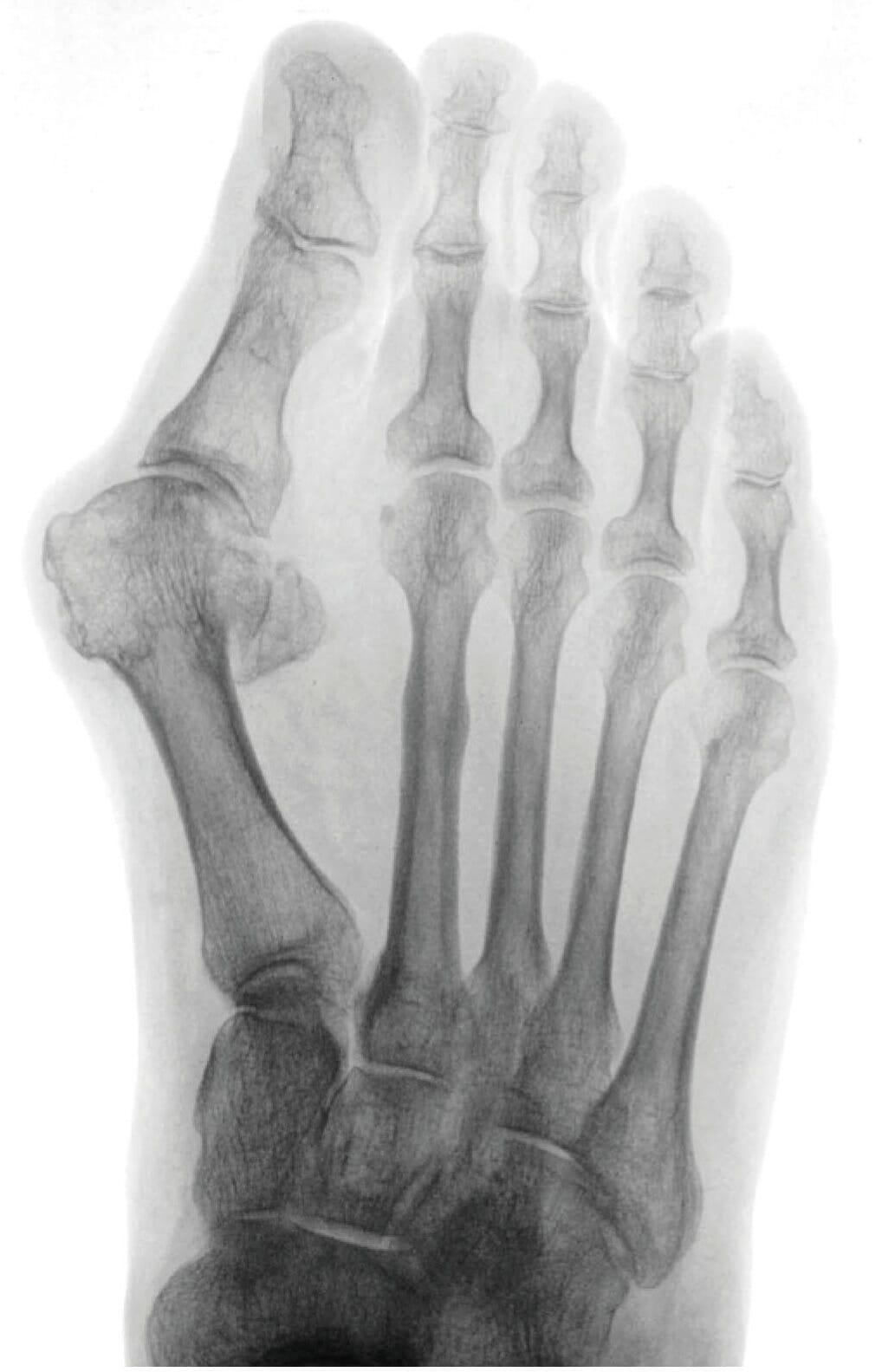 Präperatives Röntgenbild - Hallux valgus, Metatarsus primus varus, dezentrierte Sesambeine