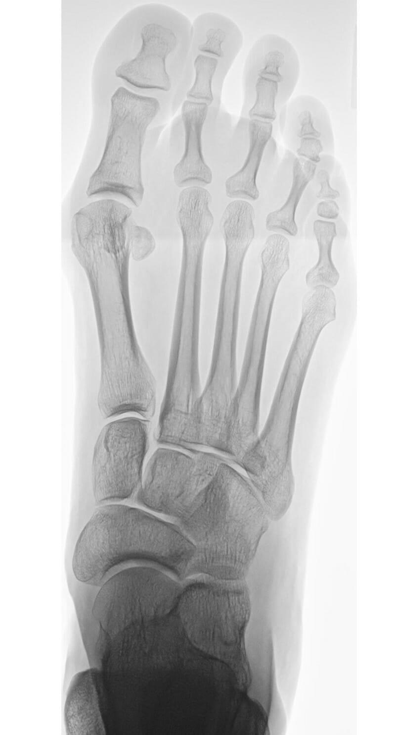 Röntgen vor OP