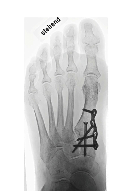 Röntgenbild ap im Stehen nach Lapidusarthrodese