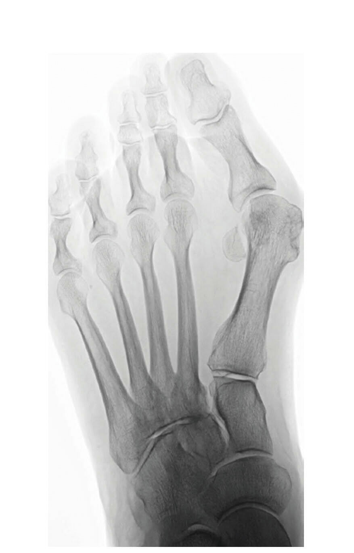 Röntgenbild ap im Stehen vor Lapidusarthrodese