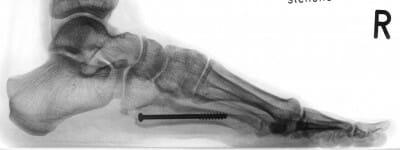 Röntgenbild seitlich: Ausheilung des Mittelfußbruches des fünften Mittelfußknochens (Ermüdungsfraktur) - 7 Monate nach perkutan minimal invasiver Schraube zur Stabilisierung im Knochenmark des Fußknochens.