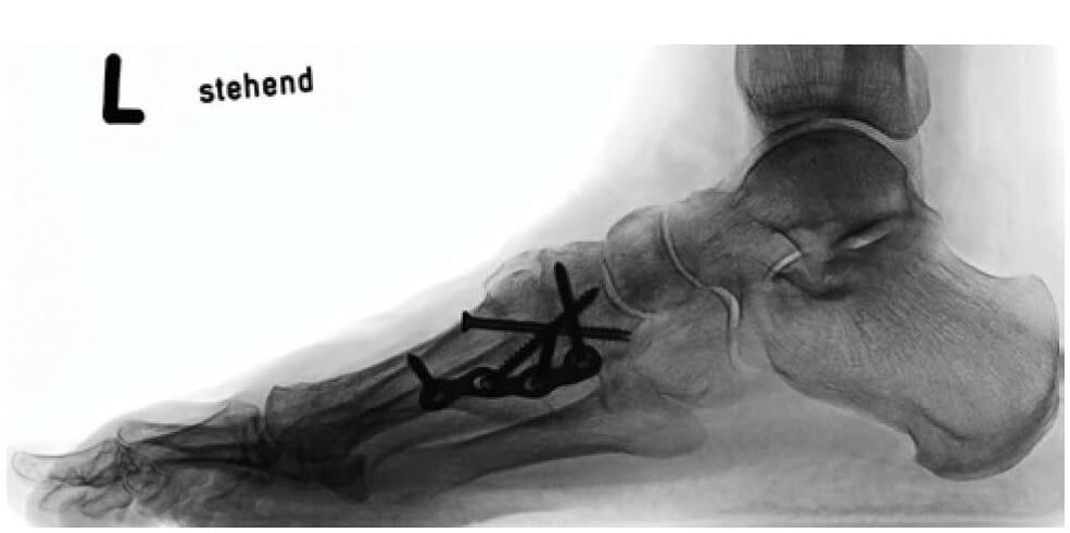 Röntgenbild seitlich im Stehen nach Lapidusarthrodese