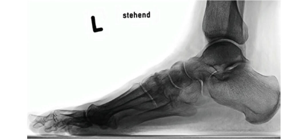 Röntgenbild seitlich im Stehen vor Lapidusarthrodese
