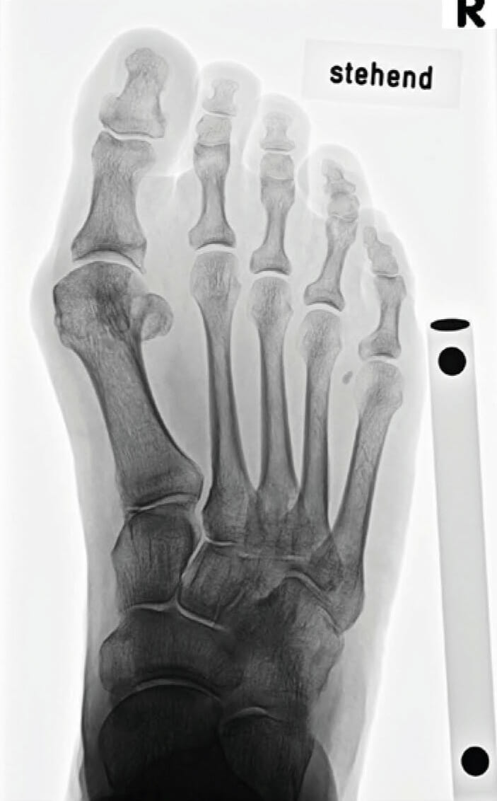 Röntgenbild vor der OP - Hypermobiler 1. Mittelfußknochen, Hallux valgus, Hallux interphalangeus, dezentrierte Sesambeine