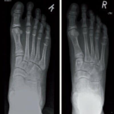 Vor und nach Tarsaler-Triple-Osteotomie (TTO)